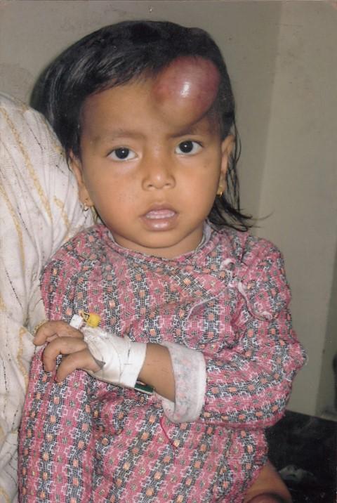 Hemophelia Child